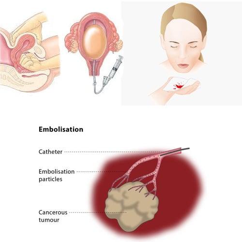 Bleeding-States--PPH,-Haemoptysis,-Tumour-Embolization-Dr.Jathin's-Vein-Center