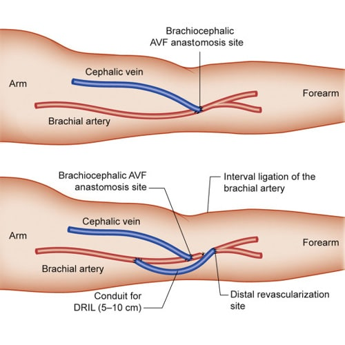 Revascularization-Of-Dialysis-AVFs-Dr.Jathin's-Vein-Center
