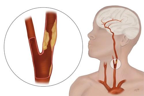 Stroke-&-Carotid-Artery-Disease-Dr.Jathin's-Vein-Center