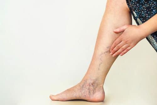 Varicose-Veins-Treatment-Dr. Jathin