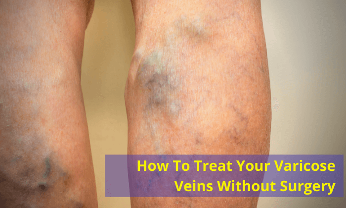 How-To-Treat-Your-Varicose-Veins-Without-Surgery-dr. jathin