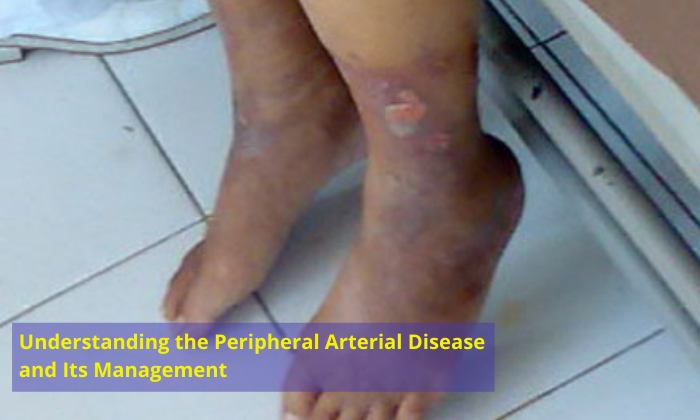 Understanding-the-Peripheral-Arterial-Disease-and-Its-Management