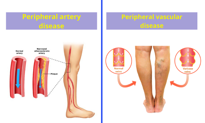 Are-peripheral-artery-disease-and-peripheral-vascular-disease-the-same