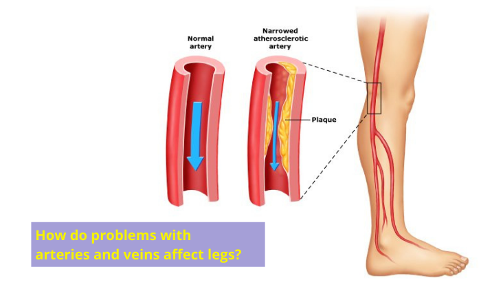 How do problems with arteries and veins affect legs