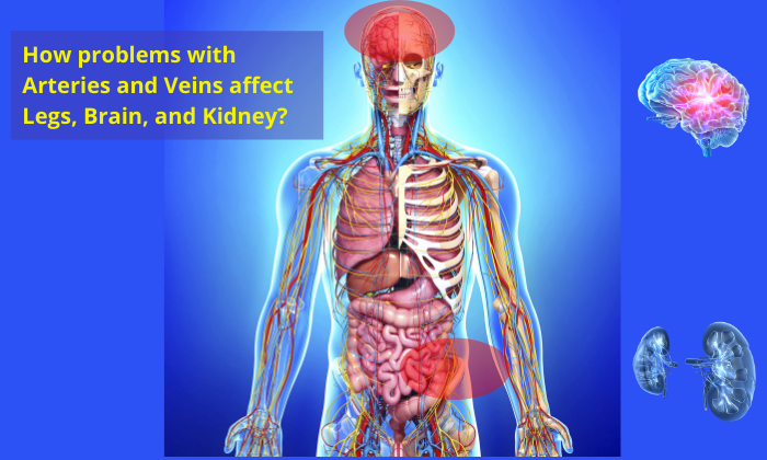 How-problems-with-Arteries-and-Veins-affect-Legs-Brain-and-Kidney
