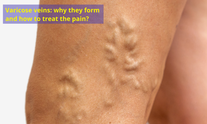 Varicose-veins-why-they-form-and-how-to-treat-the-pain