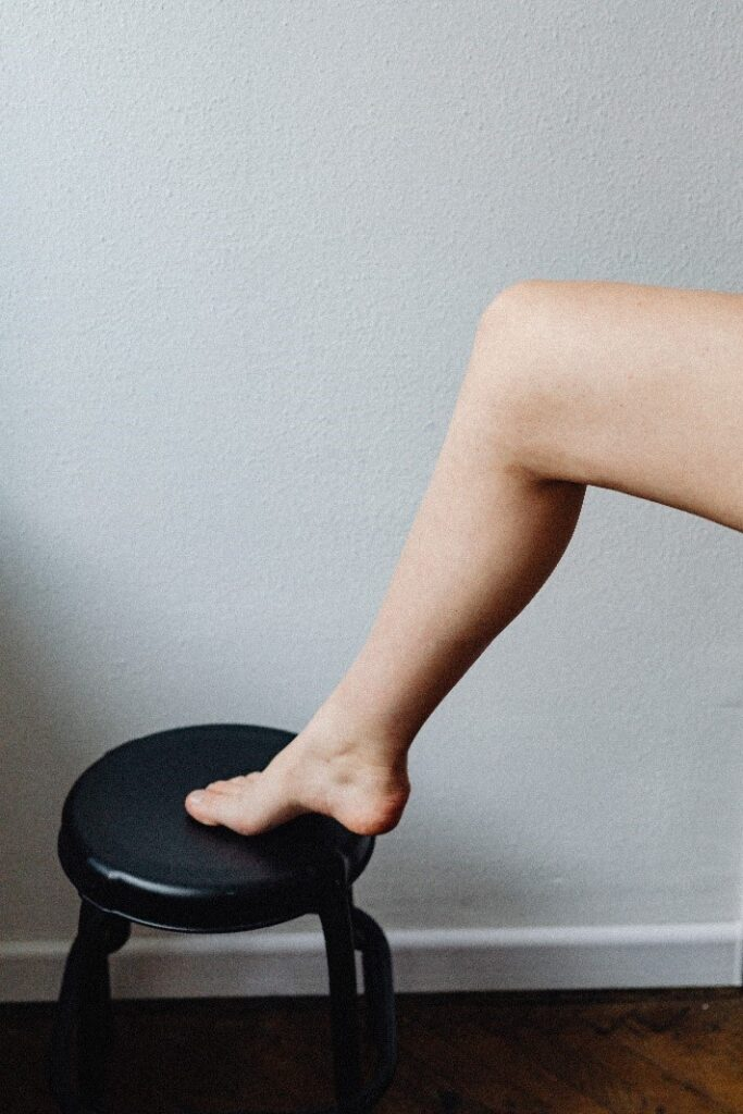 The Complete Guide to Varicose Veins in Womens Legs1