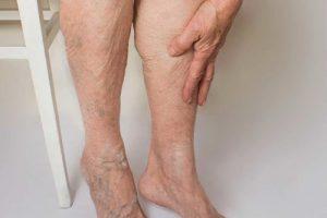 Peripheral-Vascular-Disease-Dr.Jathin's-Vein-Center